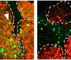 Des neurones reprogrammés in vivo