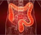 Des résultats de phase 2 prometteurs sur murlentamab dans le cancer colorectal