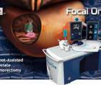 Des ultrasons lyonnais contre le cancer de la prostate : de l'Ablatherm au Focal One
