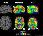Détecter la maladie d'Alzheimer grâce aux ondes cérébrales !
