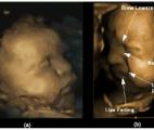 Le fœtus est capable d'exprimer des émotions sur son visage