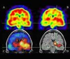 La crise d'épilepsie prédite avec 17 minutes d'avance