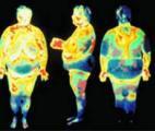 La graisse du ventre augmente le risque de mortalité