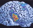 La mémoire associative indirecte : un mécanisme cérébral identifié