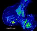 La physique pour voir à l'intérieur des tumeurs