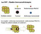La radio-immunothérapie alpha : une arme à double détente contre le cancer