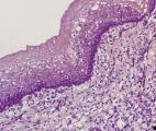 La reconstruction d'organes par bio ingénierie arrive !