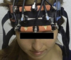 La stimulation cérébrale profonde ravive les souvenirs de patients Alzheimer