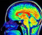 Le besoin en oxygène dans notre cerveau est lié à notre activité cérébrale