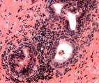 L'Enzalutamide : une nouvelle arme contre le cancer avancé de la prostate