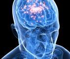 L'épilepsie bientôt traitée par le froid ?