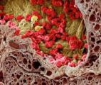 Les nanoparticules rejoignent l'arsenal anti-cancer