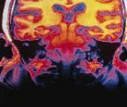 Maladie d'Alzheimer : l'inflammation systémique est liée à un risque accru de démence