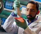 Mélanome : deux mutations génétiques clés identifiées