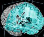 Modéliser l'activité du cerveau en 3D