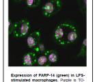 PARP14, une protéine contre le cancer