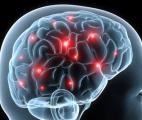 Plasticité cérébrale : il est possible de vivre avec la moitié du cerveau seulement