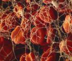 Thérapie génique pour l'hémophilie
