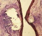 Thérapie génique : un nouveau vecteur viral ouvre la voie au traitement de nombreuses maladies vasculaires