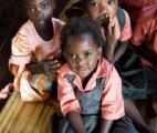 Un antibiotique bon marché peut sauver les enfants souffrant de malnutrition