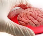 Un mini-cerveau artificiel présente les mêmes caractéristiques qu'un cerveau de bébé