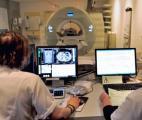 Un modèle mathématique qui prévoit le risque de cancer individuel de cancer du poumon