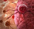 Un nouveau médicament contre certains cancers avancés