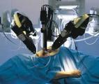 Un nouveau robot pour mieux détruire les tumeurs du foie