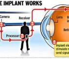 Un oeil bionique restaure la vue d'un homme malvoyant depuis 40 ans