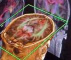 Un patient opéré au cerveau alors qu'il reste éveillé et guidant le chirurgien grâce à la réalité virtuelle