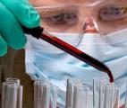 Un test sanguin pour détecter 50 types de cancer