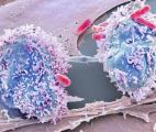 Un virus pour combattre le cancer du cerveau