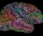 Une carte du cerveau clarifie la répartition des fonctions entre hémisphère gauche et hémisphère droit