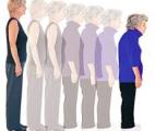 Une étape majeure vers la guérison de l'ostéoporose