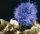 Une firme française réussit à reprogrammer les cellules immunitaires pour les mobiliser contre le cancer