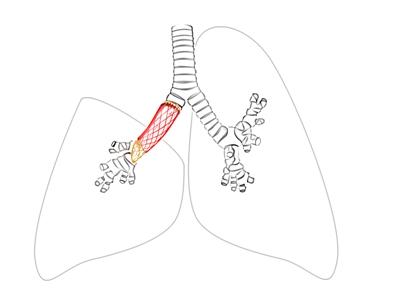 premiere greffe pulmonaire