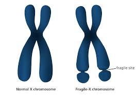 Une Nouvelle Mol 233 Cule Pour Traiter Le Syndrome De L X